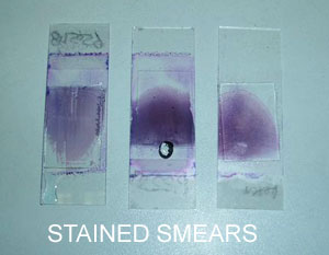Stained smears